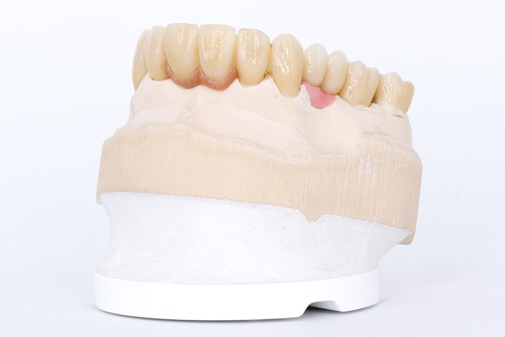 Zahnzentrum Weiden-Zahnersatz