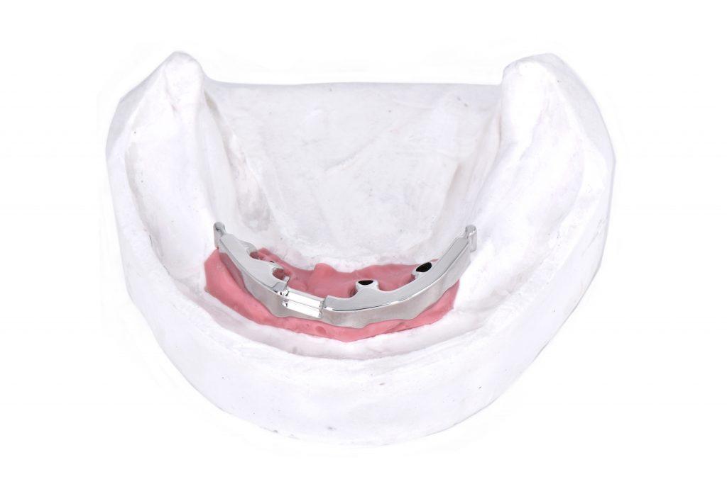 Zahnersatz-Steg